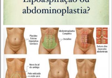 Lipoaspiração ou abdominoplastia?