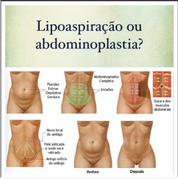 Lipoaspiração ou abdominoplastia? Saiba as diferenças!