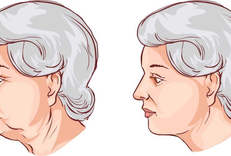 Lipoenxertia para revitalização facial